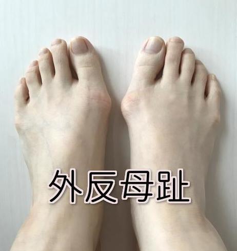 外反母趾 痛み
