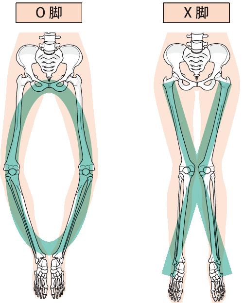 膝の痛み 子供