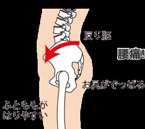 腰痛 筋トレ