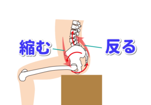 腰痛 原因