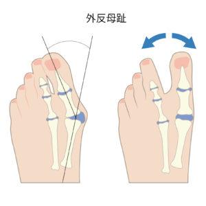 膝の痛み ランニング 原因